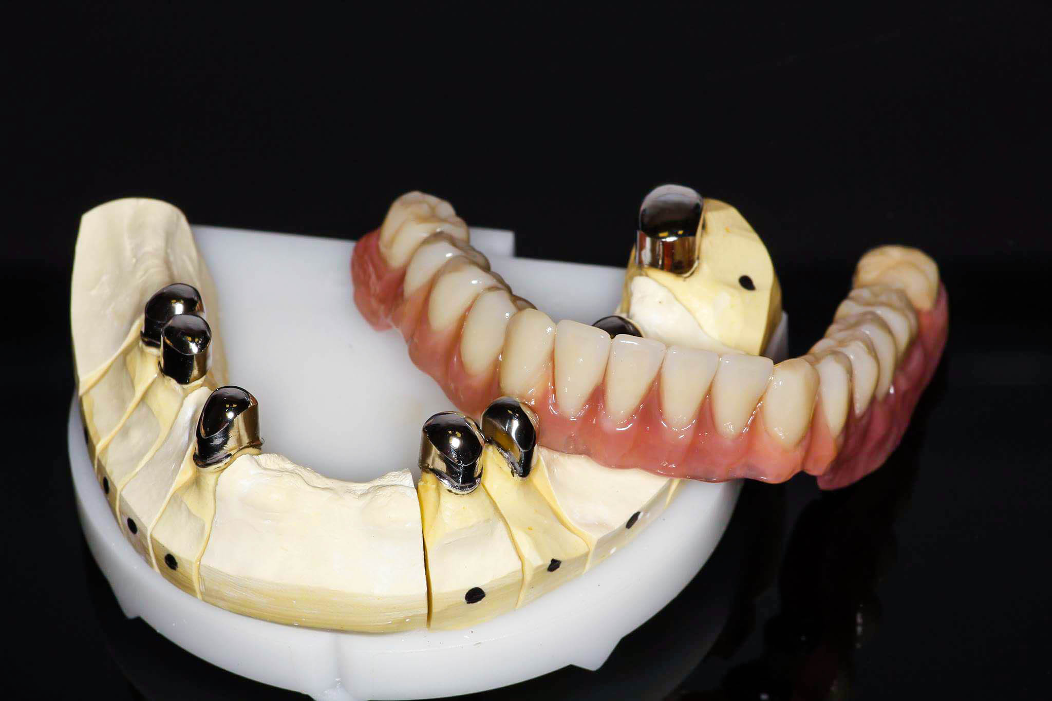 Oferta u dental service zierke